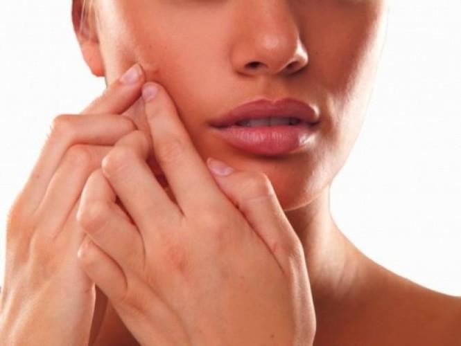Acne Cream – Monday Market of the Week